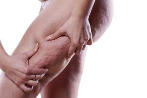jak zwalczyć cellulit