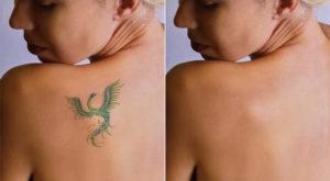 usuwanie tatuażu