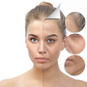wiotkość skóry