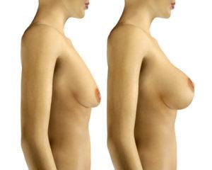 lifting piersi, podniesienie piersi, mastopeksja