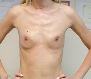 powiększanie piersi 1